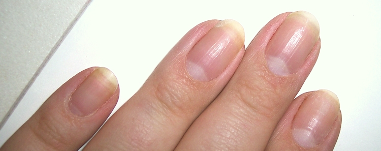 Beautytipp Der Woche Tipps Gegen Verfarbte Nagel