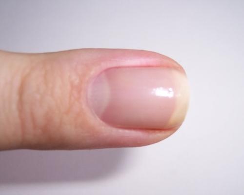 Gribok auf den Nägeln der Hände das Volksmittel