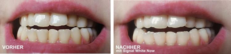 signal-whitenow